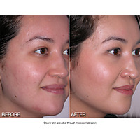 MICRODERM MD + Tête diamant corps - Microdermabrasion